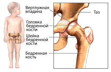 Незрелые суставы ребенка какому святому молится об успешной операции на суставе