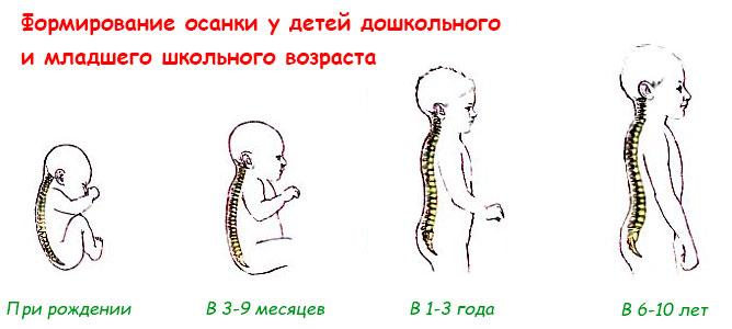 Формирование осанки у детей дошкольного возраста